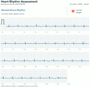 Fitbit Sense ECG Record