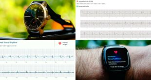 Fitness Smartwatches with ECG